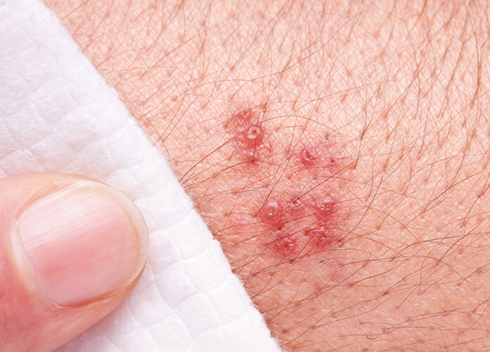 Herpes Zoster Virus Infection (Shingles) Facts, Pictures and Vaccine Herpes Zoster Virus Infection (Shingles) Facts, Pictures and Vaccine 2