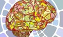 Dementia and Alzheimer's disease: what's the difference?