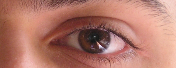 The eyes have it - what your eyes say about your health